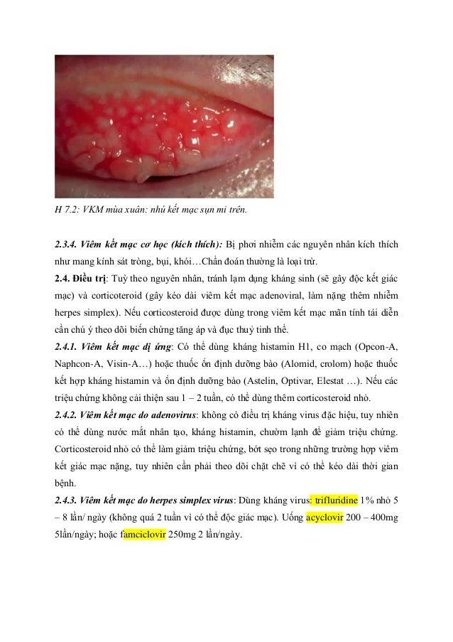 H 7.2: VKM mùa xuân: nhú kết mạc sụn mi trên. 2.3.4. Viêm kết mạc cơ học (kích thích): Bị phơi nhiễm các nguyên nhân kích ...