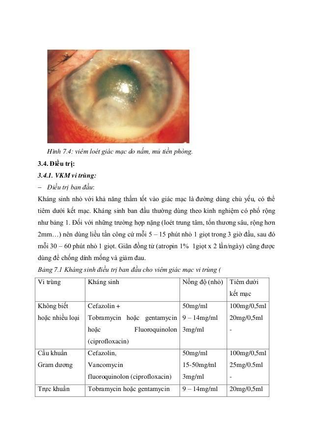 Hình 7.4: viêm loét giác mạc do nấm, mủ tiền phòng. 3.4. Điều trị: 3.4.1. VKM vi trùng:  Điều trị ban đầu: Kháng sinh nhỏ...