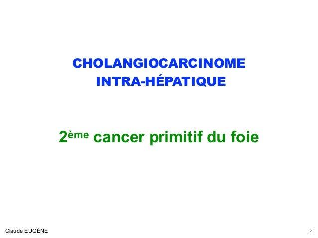 Cholangiocarcinome intra-hépatique (signes, diagnostic, traitement) Slide 2
