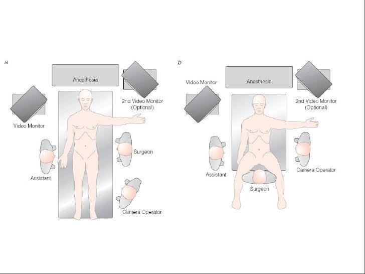 Sonda en T o cierre primario?    Durante la era de colecistectomía abierta, resultados de estudios     aleatorios demostr...