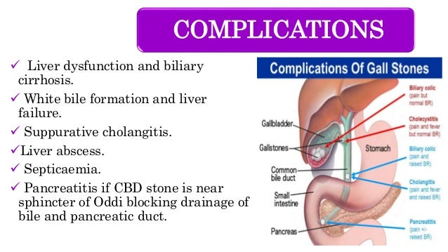 COMPLICATIONS  Liver dysfunction and biliary cirrhosis.  White bile formation and liver failure.  Suppurative cholangit...
