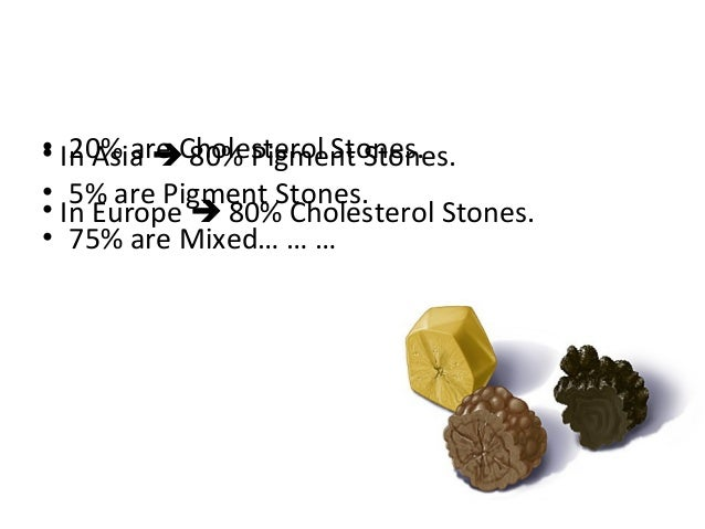 • 20% are Cholesterol Stones. • 5% are Pigment Stones. • 75% are Mixed… … … • In Asia  80% Pigment Stones. • In Europe  ...