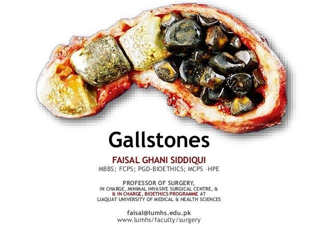 Gallstones FAISAL GHANI SIDDIQUI MBBS; FCPS; PGD-BIOETHICS; MCPS –HPE PROFESSOR OF SURGERY, IN CHARGE, MINIMAL INVASIVE SU...