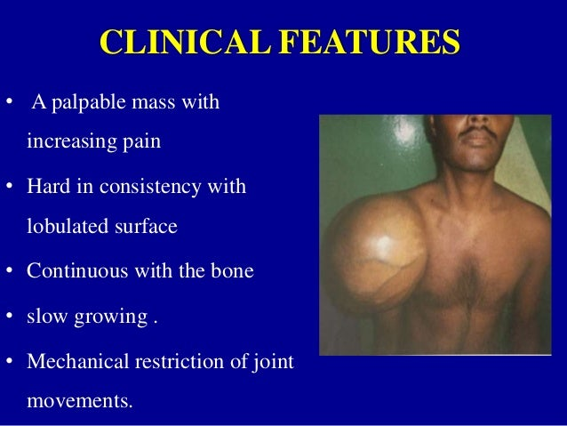 Chondrosarcoma