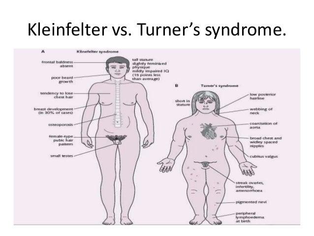 turner and klinefelter syndrome