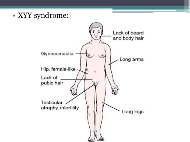 chromosomal abnormalities,