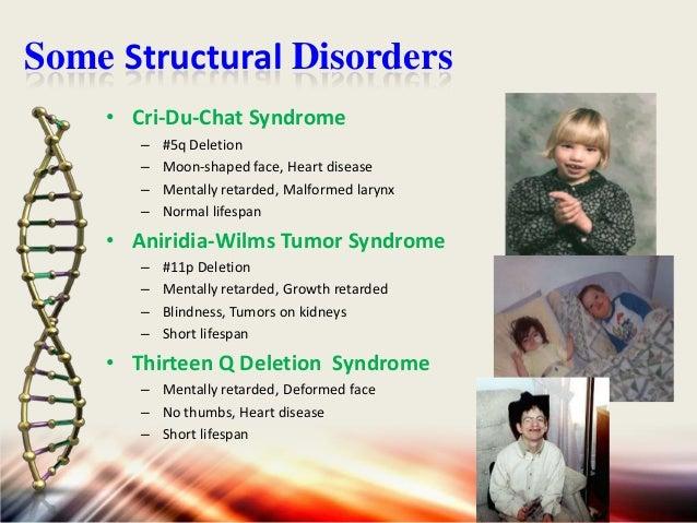 Some Structural Disorders • Prader-Willi Syndrome – – – –  #15q Deletion Small bird-like head, Mentally retarded Respirato...
