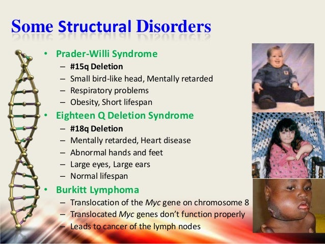 Some Structural Disorders • Cat-Eye Syndrome – – – –  #22q Deletion Fused fingers and toes Mentally retarded, Small jaw He...