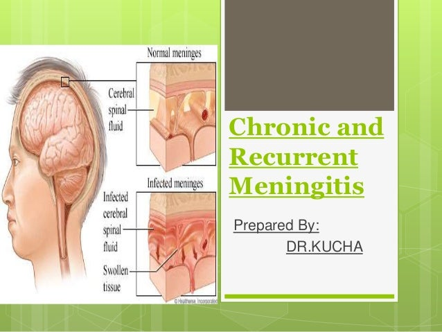 Chronic andRecurrentMeningitisPrepared By:       DR.KUCHA