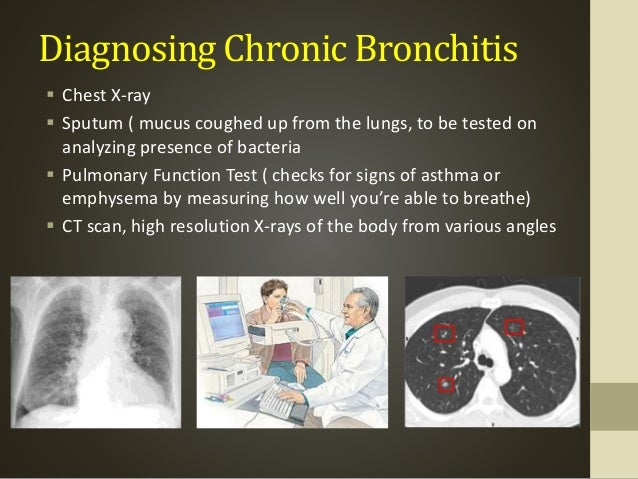 Chronic bronchitis emphysema viral and bacterial infections underlying disease processes such as asthma and cystic fibrosis 10 diagnosing chronic bronchitis sciox Image collections