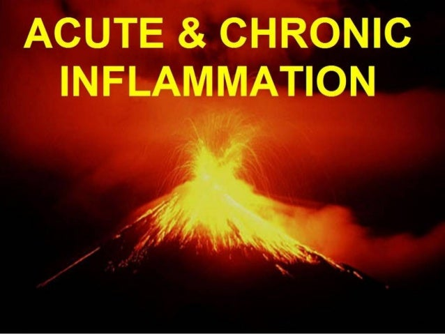 CHAPTER 2   Inflammation        (5 OBJECTIVES)1) (Concept) Understand the chain, progression, or sequence of vascular and ...