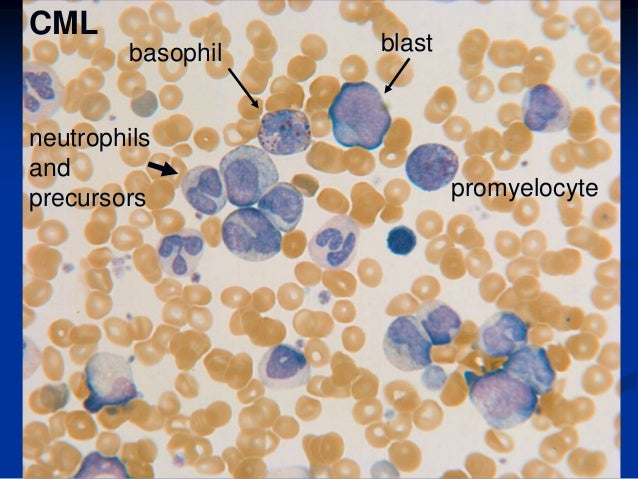 Blood smear shows a preponderance of mature neutrophilic granulocytes.Myelocyte at center, basophil at upper right