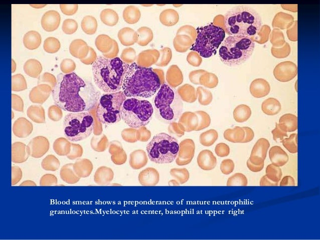 Blood smear showing a greater left shift. At center is a myeloblast