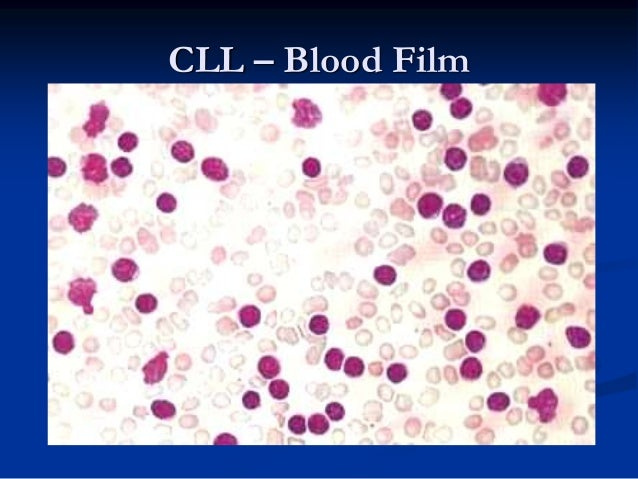 Bone marrow smear in B-CLL, with diffuse infiltration of the bone marrow