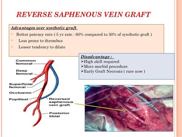 vertebral vein - Selo.l-ink.co