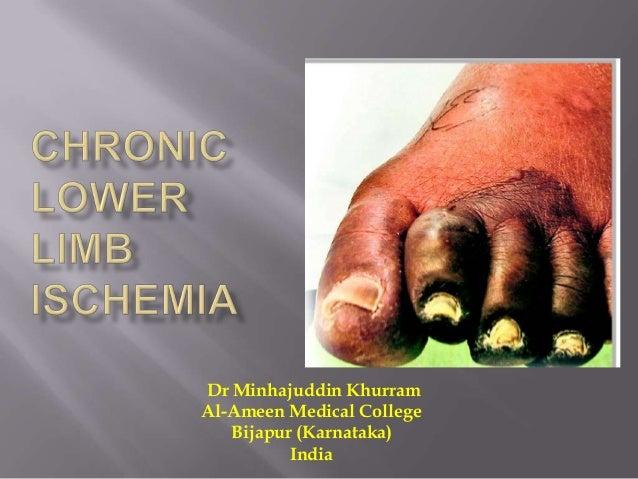 Dr Minhajuddin Khurram Al-Ameen Medical College Bijapur (Karnataka) India