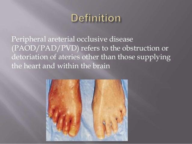 Chronic lower limb ischemia Slide 2