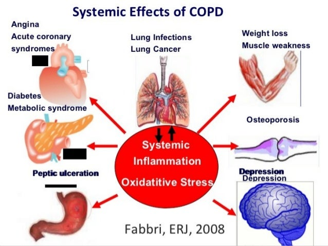 Copd Symptoms  Driverlayer Search Engine. Quality Signs. Plumbing Signs Of Stroke. Mca Branch Signs. Earth Water Signs. Rounded Corner Signs. Overcoming Signs Of Stroke. Guidelines Signs. No Boys Allowed Signs Of Stroke