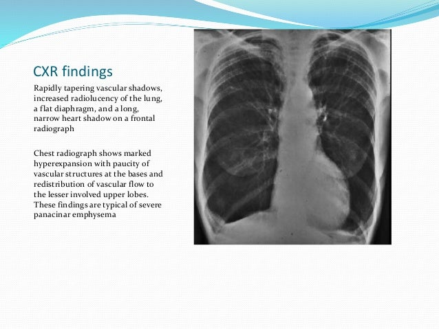 Chronic Obstructive Pulmonary Disease: An Overview