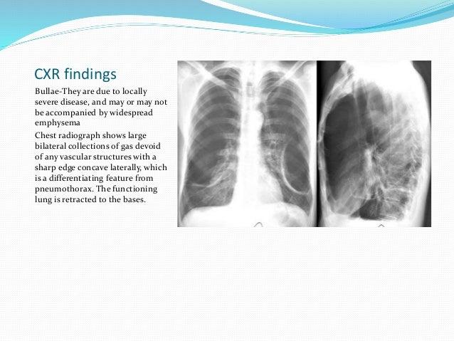 N Ray Radiography Chronic obstructive pu...