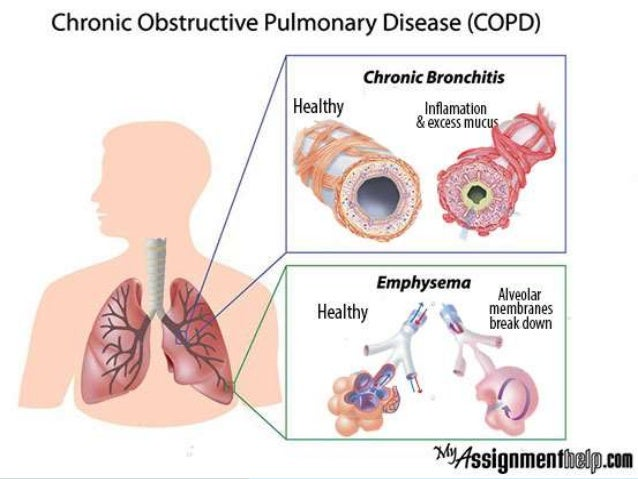 CHRONIC OBSTRUCTIVE PULMONARY DISEASE BETTER KNOWN AS COPD IS A CHRONIC OBSTRUCTIVE DISEASE OF THE LUNGS DUE TO WHICH THE ...