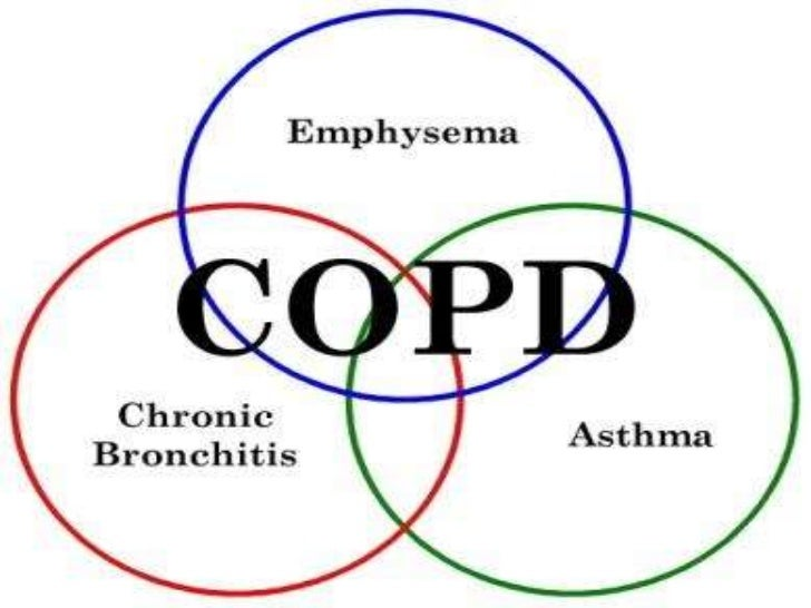 essay on chronic obstructive pulmonary disease Intervention program for chronic obstructive pulmonary disease among homeless veteran smokers in florida essay.