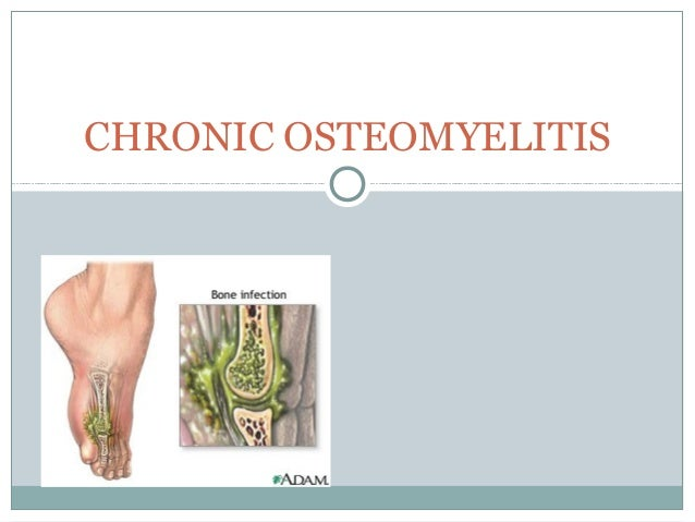 chronic osteomyelitis Chronic osteomyelitis try to refer all patients with chronic osteomyelitis[md]surgery is difficult, bloody, and dangerous.
