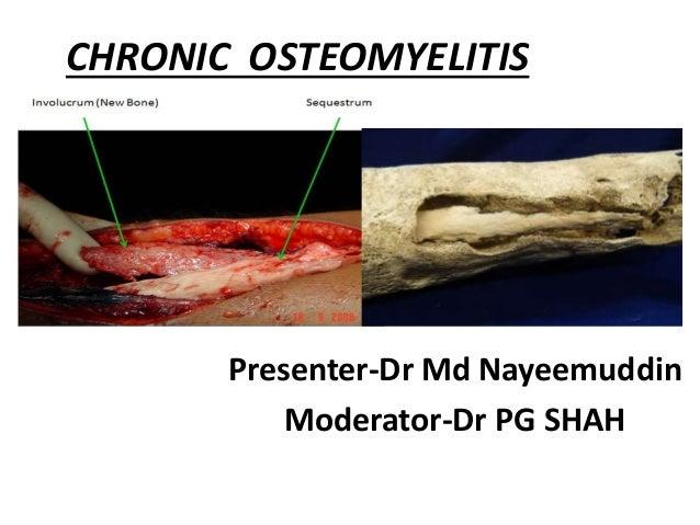 Diagnosis and Management of Osteomyelitis