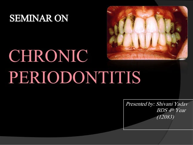 SEMINAR ON CHRONIC PERIODONTITIS Presented by: Shivani Yadav BDS 4th Year (12083)