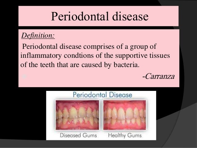 Chronic periodontitis and smoking Prevalence and dose ...