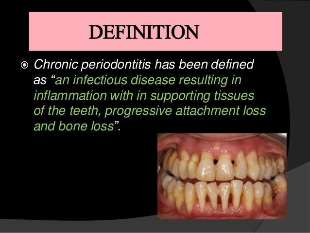 Prevalence of chronic periodontitis in an obese population ...