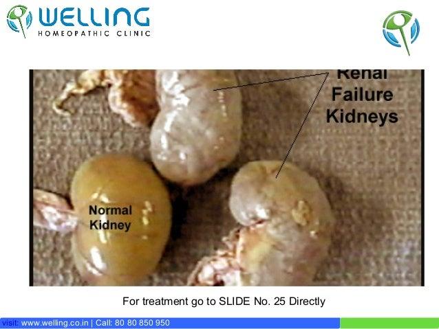 Treatment for Chronic Renal Failure / CKD Slide 2