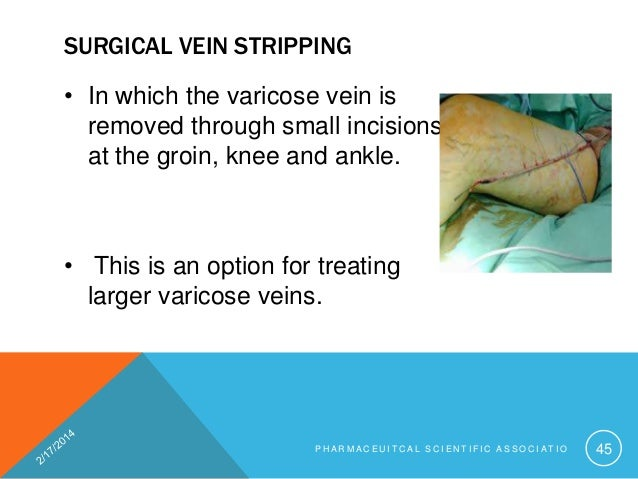 Chronic Venous Disease