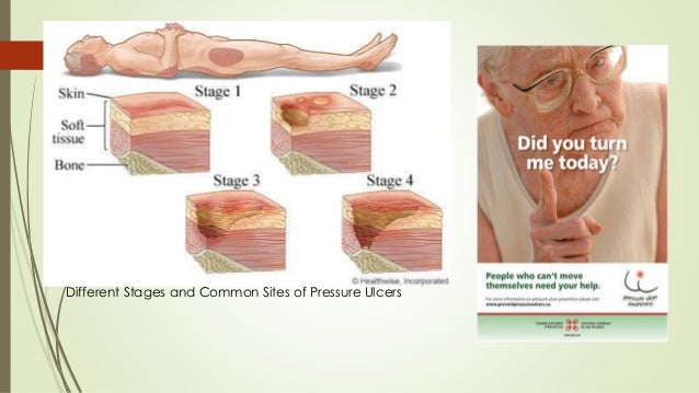 chronic wound management leg ulcers O'donnell tf, lau j a systematic review of randomized controlled trials of wound  dressing for chronic venous ulcer j vasc surg 200644:1118-25 36.