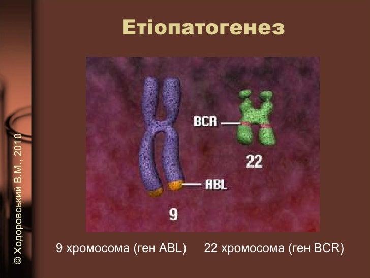 Етіопатогенез 9 хромосома (ген  ABL ) 22  хромосома (ген  BCR ) ©   Ходоровський В.М. , 2010