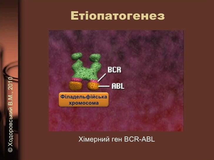 Етіопатогенез Хімерний ген  BCR-ABL ©   Ходоровський В.М. , 2010 Філадельфійська хромосома