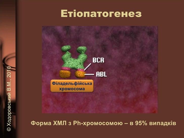 Етіопатогенез Форма ХМЛ з Р h -хромосомою – в 95% випадків ©   Ходоровський В.М. , 2010 Філадельфійська хромосома