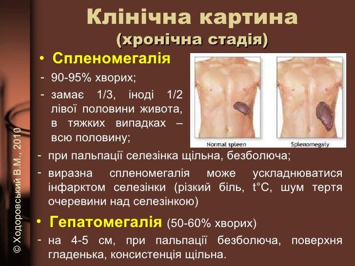 <ul><li>Спленомегалія  </li></ul>Клінічна картина (хронічна стадія) <ul><li>90-95% хворих; </li></ul><ul><li>замає 1/3, ін...