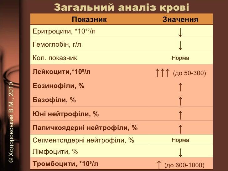 Загальний аналіз крові ©   Ходоровський В.М. , 2010 Показник Значення Еритроцити, *10 12 /л ↓ Гемоглобін, г/л ↓ Кол. показ...