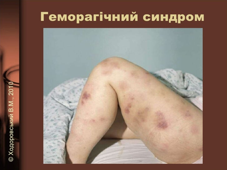 Геморагічний синдром ©   Ходоровський В.М. , 2010