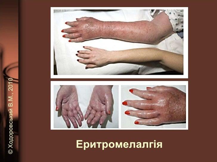 Еритромелалгія ©   Ходоровський В.М. , 2010