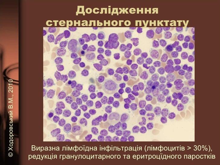 Дослідження стернального пунктату <ul><li>Виразна лімфоїдна інфільтрація (лімфоцитів  > 30 %), редукція гранулоцитарного т...