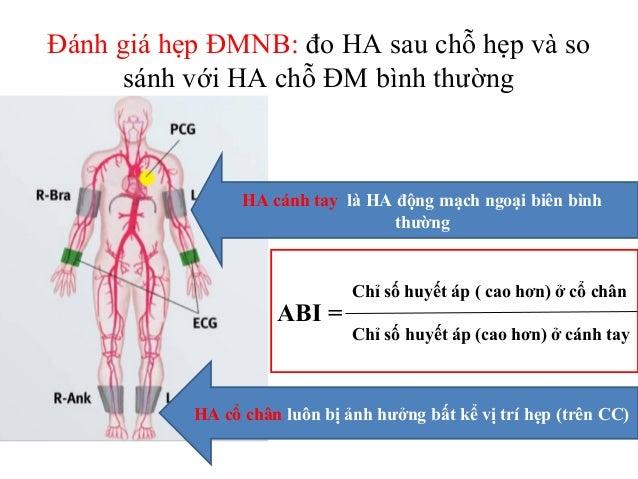 Ý nghĩa của giá trị ABI • Theo định nghĩa của Hiệp hội Tim mạch Hoa kỳ (AHA): ABI được tính bằng thương số mà tử số là huy...
