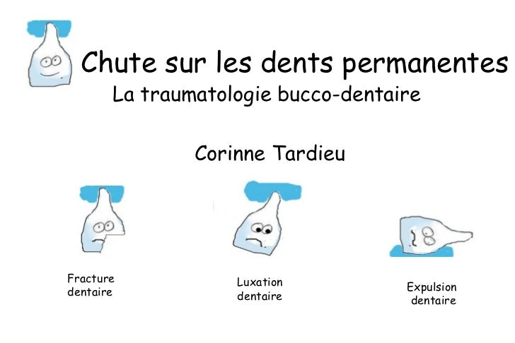 Chute sur les dents permanentes La traumatologie bucco-dentaire  Corinne Tardieu Fracture  dentaire Luxation  dentaire Exp...