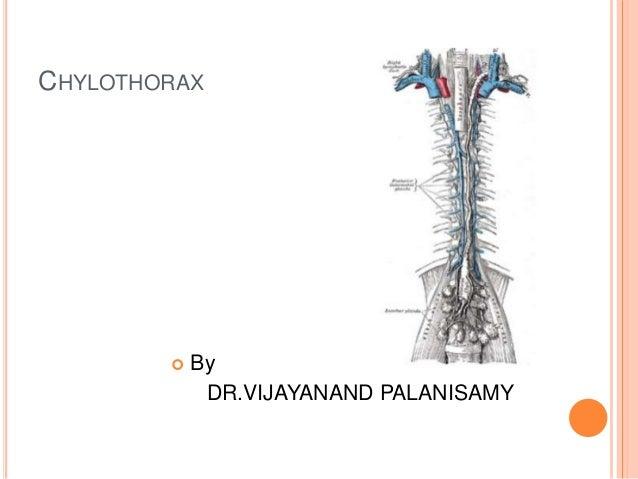 CHYLOTHORAX  By DR.VIJAYANAND PALANISAMY