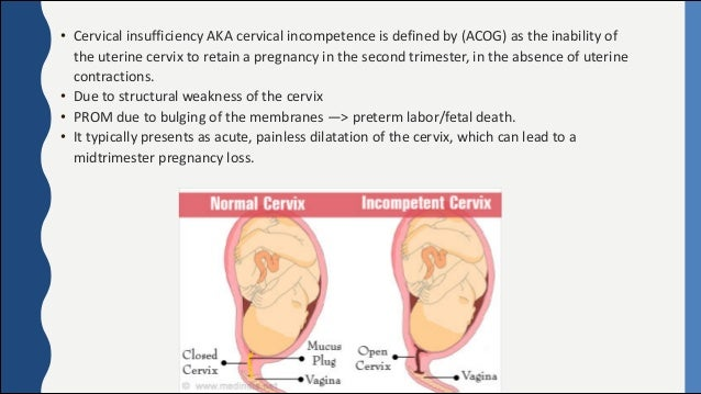 Cervical Incompetence (insufficiency)