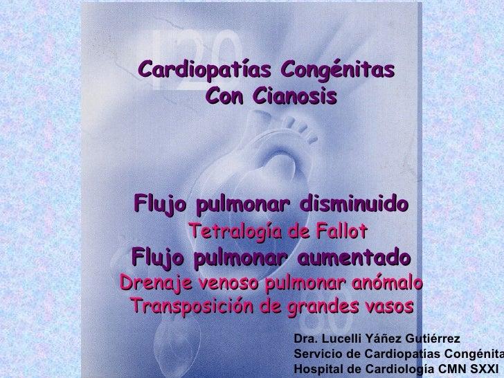 Cardiopatías Congénitas       Con Cianosis Flujo pulmonar disminuido      Tetralogía de Fallot Flujo pulmonar aumentadoDre...