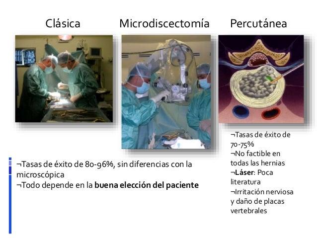 Microdiscectomía para Ciática