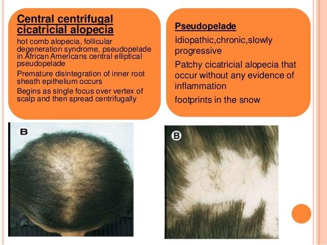 Cicatricisial Alopecia