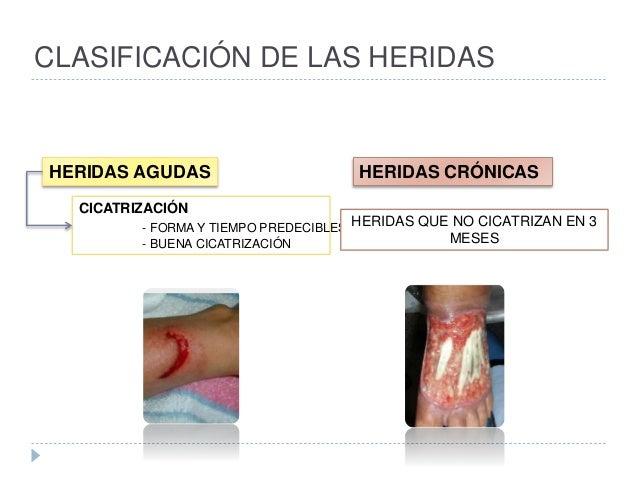 CLASIFICACIÓN DE LAS HERIDAS HERIDAS AGUDAS HERIDAS CRÓNICAS CICATRIZACIÓN - FORMA Y TIEMPO PREDECIBLES - BUENA CICATRIZAC...